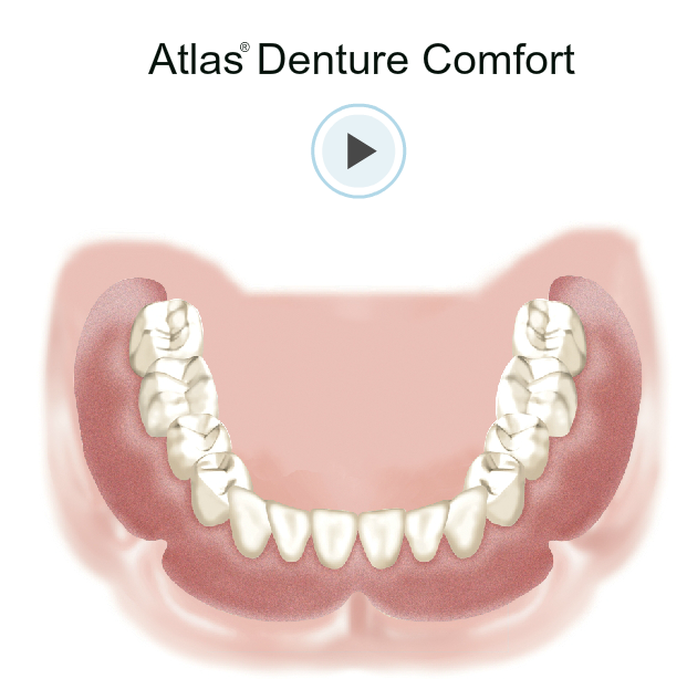 Atlas Dental Comfort at Esral Dental