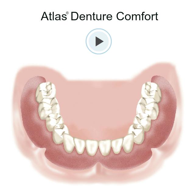 Atlas Dental Comfort at Esral Dental